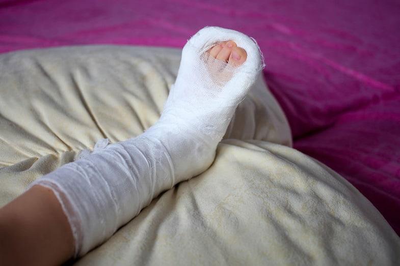 Sleep with a Broken Leg