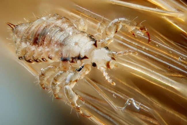 Can Head Lice Live On Pillows And Sheets?