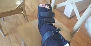 Broken Leg Cast Walking Boot