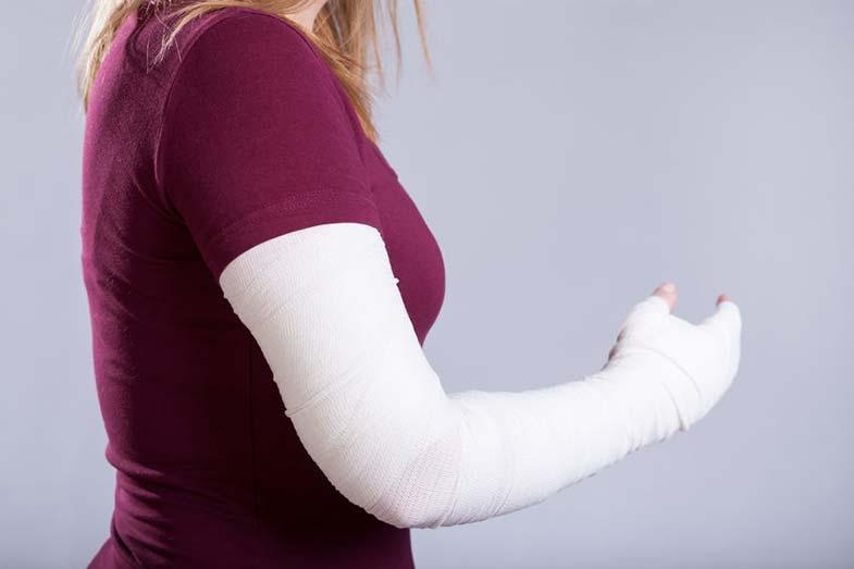 Girl Wearing Cast for Broken Arm