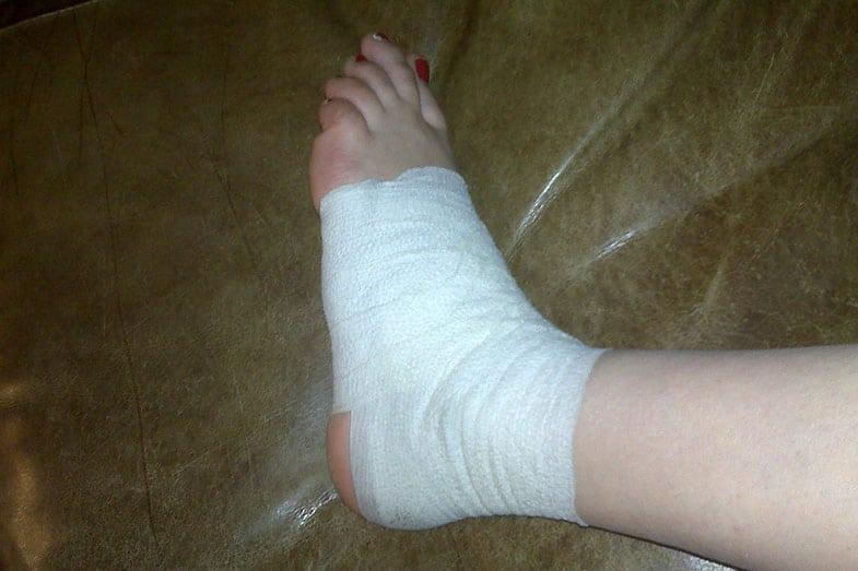 Ankle Compression Bandage